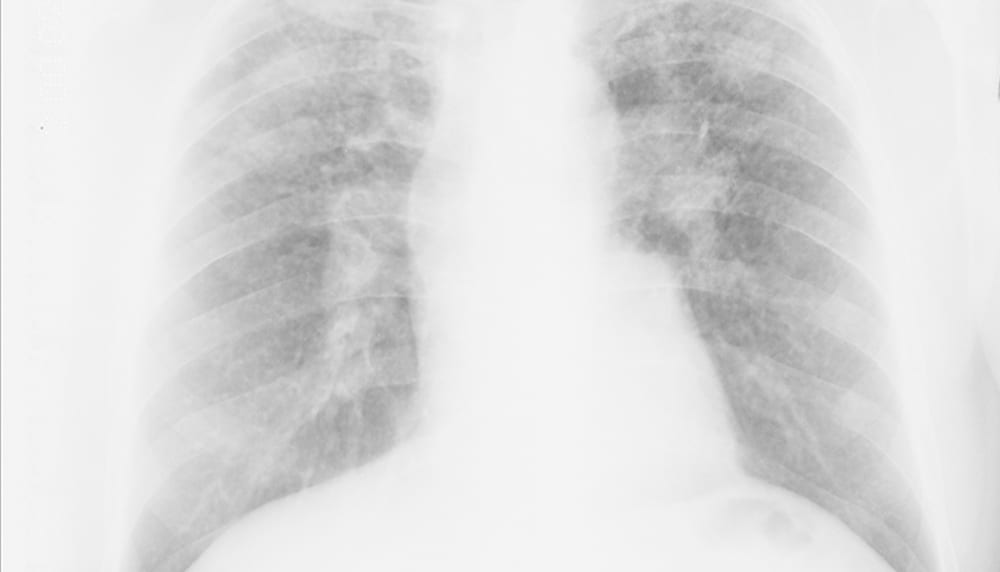 X-ray of miner's lungs